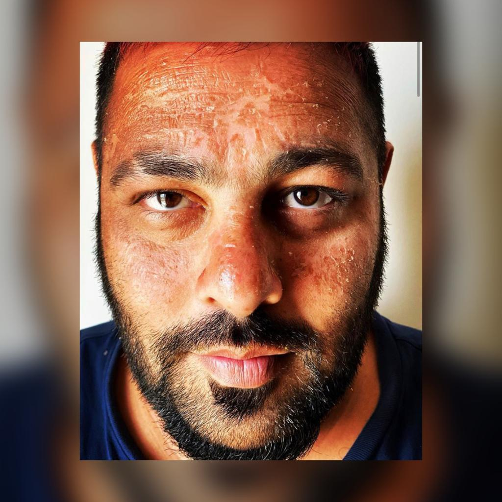 Badshah gets sunburnt; shares pictures fromMaldives vacation
