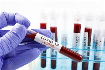Covid cases down 50% in past 8 weeks, Delhi has 61% of deaths: Centre