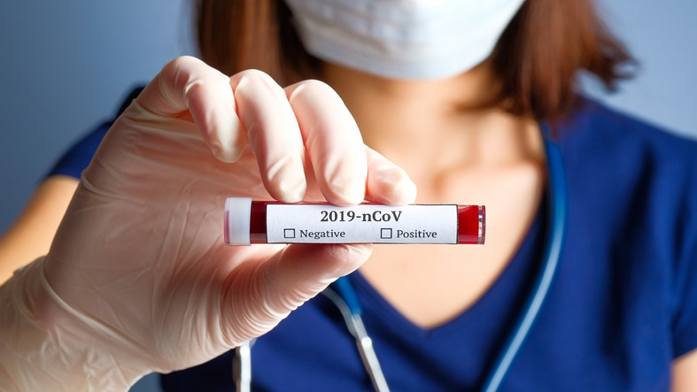 Screen COVID-19 patients for blood clotting abnormalities: Study
