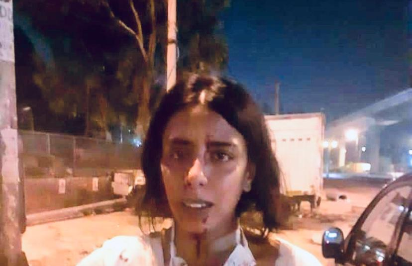 Watch Bleeding Animal Care Ngo Worker Claims Brutal -5674