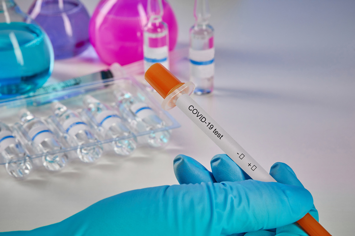 Private practitioners use non-diagnostic antibody tests to make a quick buck